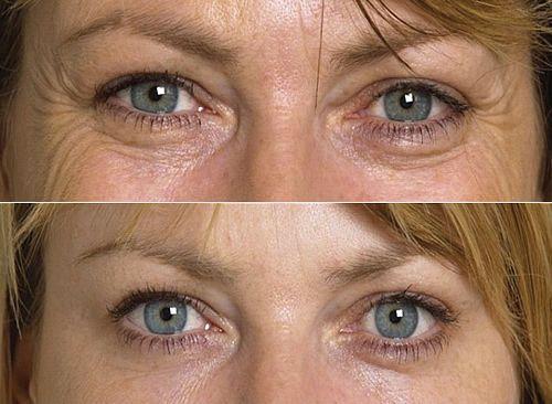 Mặt nạ lạnh hồi sinh da vùng mắt Maria Galland Eye Contour Cooling Mask 95