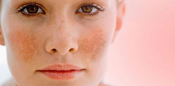 Maria Galland D520 Anti-Pigmentation Birghtening Serum